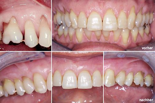 Zahnfleischtransplantation vorher nachher